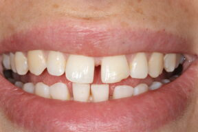 Gap in teeth, York, Orthodontics