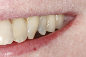 stains on teeth after
