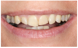 Private dentists in York