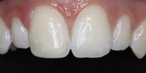 composite white spot filling